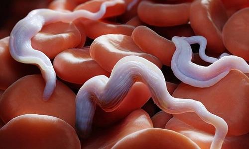 Cơ thể của con người luôn có ký sinh trùng