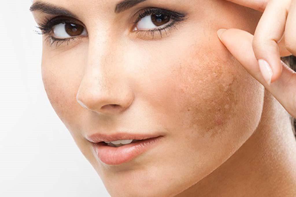 Gây khô và sạm da ảnh hưởng đến khuôn mặt của bạn