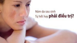 Những cách điều trị nám da sau sinh cho các chị em