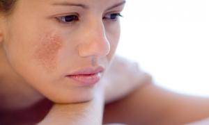 Phương pháp dân gian trị nám da cho phụ nữ sau sinh hiệu quả
